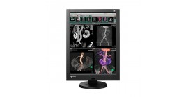 ECRAN EIZO radioforce rx340